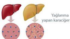 Karaciğer Yağlanmasının Zararları