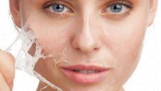 Kimyasal Peeling Zararları