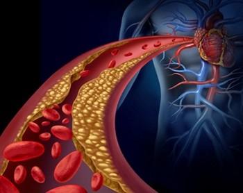 Kolesterol ilaçlarının yan etkileri