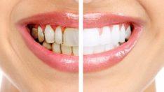 Beyazlatıcı Diş Macunu Zararları