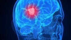 Beyinde Kist Zararları