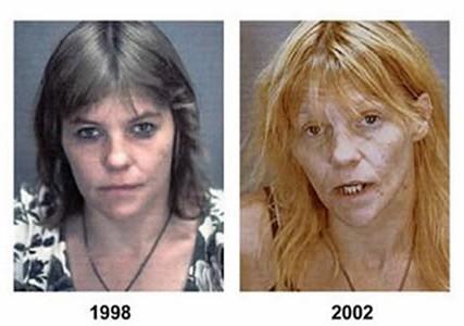 Uyuşturucu öncesi ve sonrası