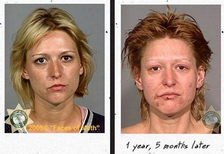Uyuşturucusu öncesi ve sonrası