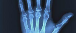 X-Ray Cihazının Zararları