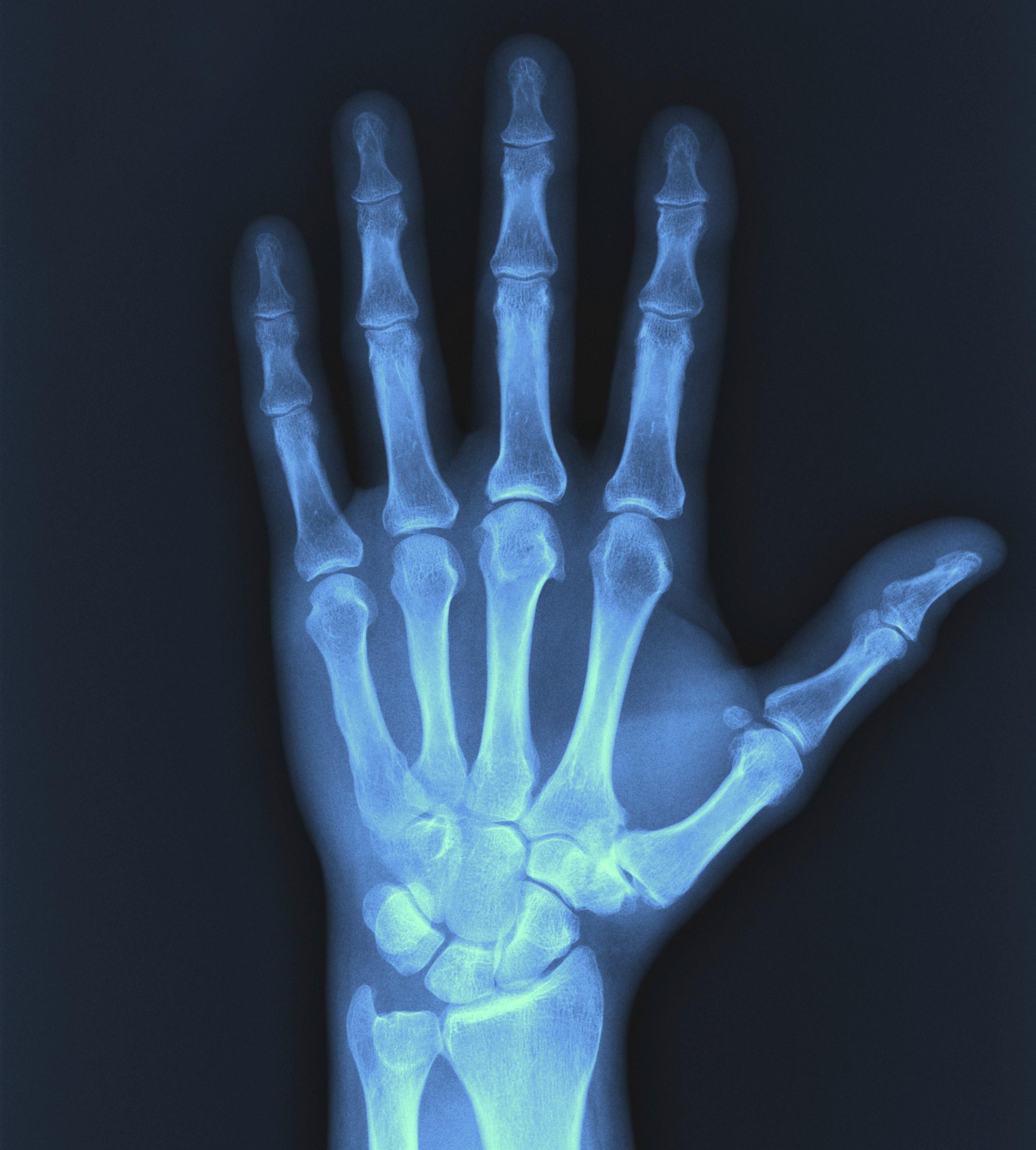 Photo of X-Ray Cihazının Zararları