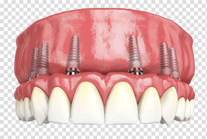 implant diş türkiye