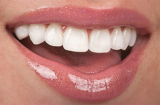 how much dental implants