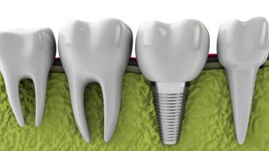 Photo of Diş implant Tedavisi Nedir? Nasıl Yapılır?